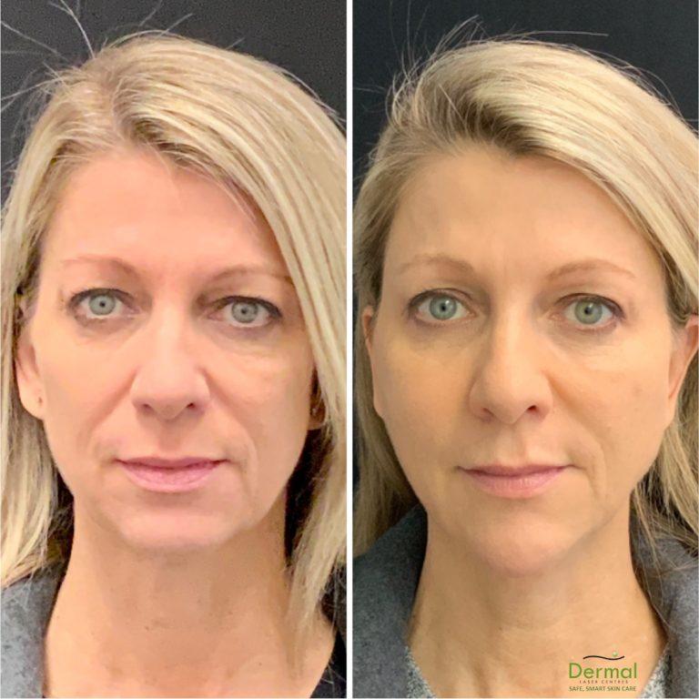 Dermal Laser Centre - Botox & Dermal fillers - 244K
