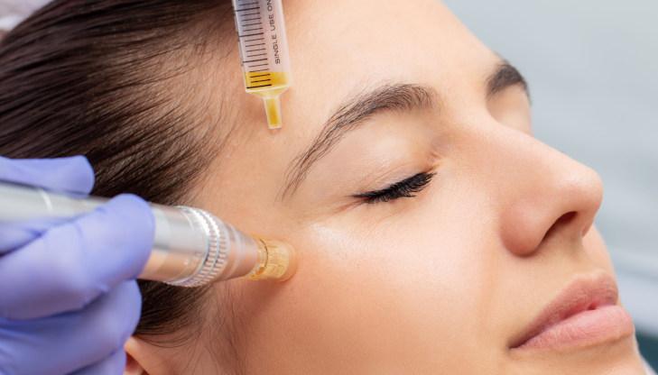 Dermal Laser Centres - Plasma Facial - 70K