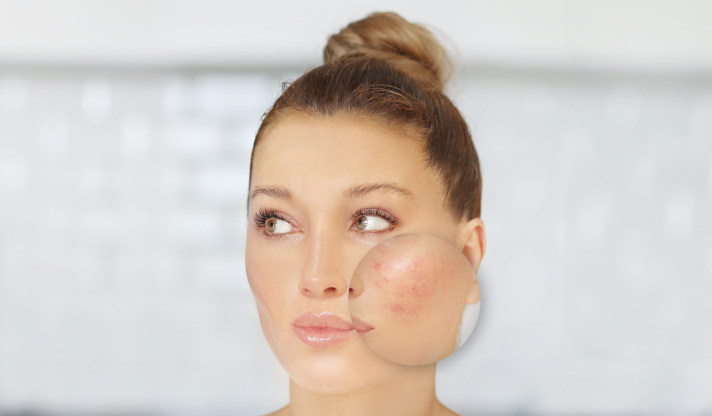 Dermal Laser Centres - Skin Rejuvenation - 36K